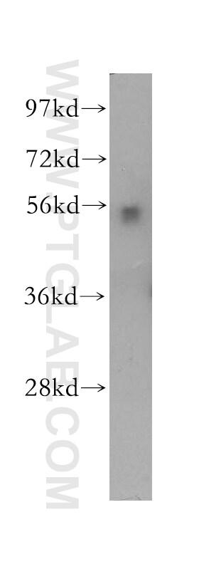 HEXA Antibody in Western Blot (WB)