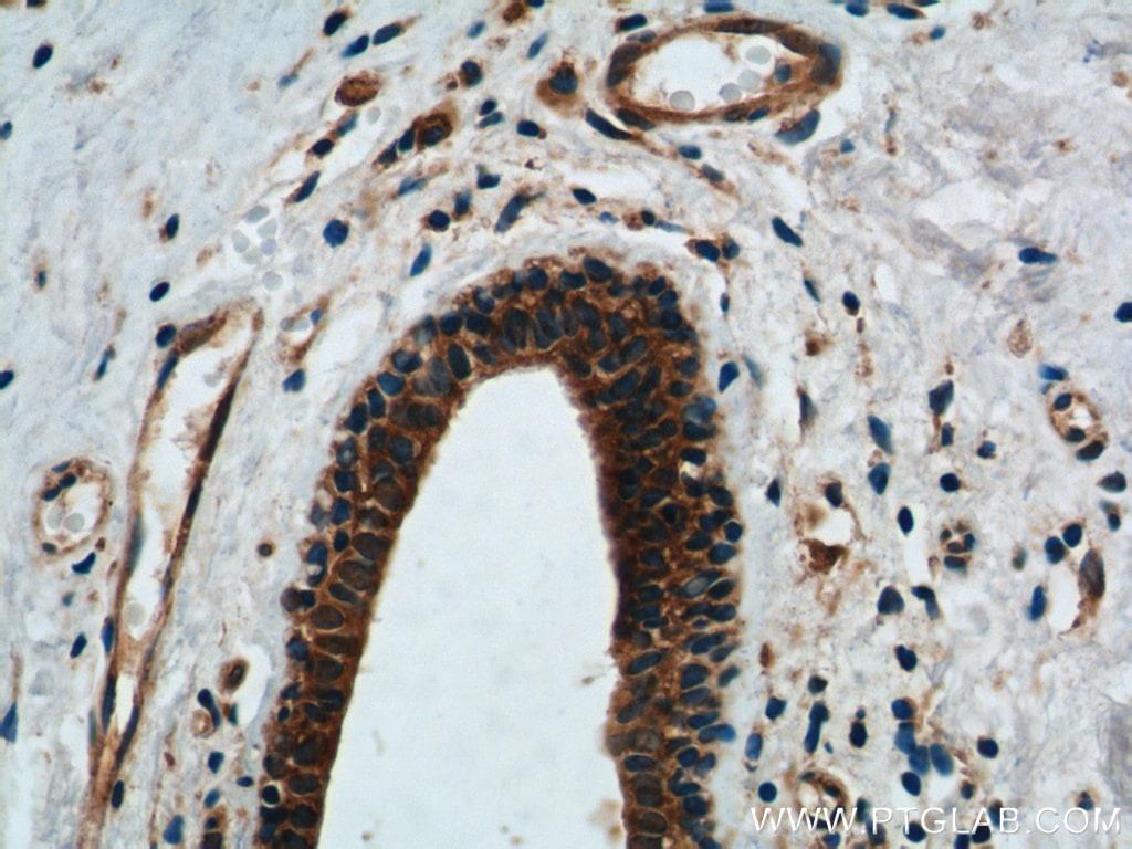 DDX20 Antibody in Immunohistochemistry (Paraffin) (IHC (P))