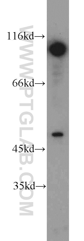 DDX20 Antibody in Western Blot (WB)