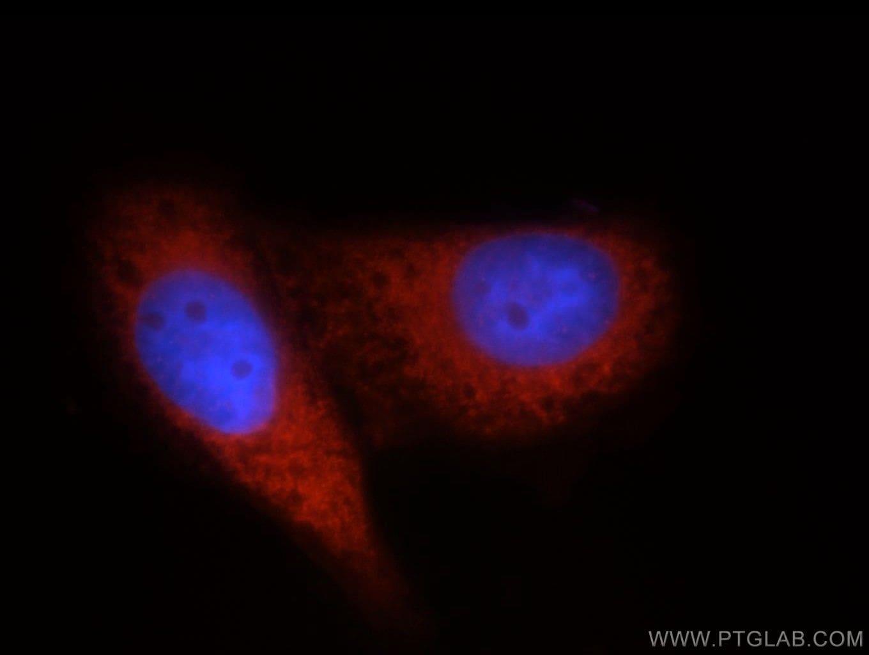 DDX20 Antibody in Immunofluorescence (IF)