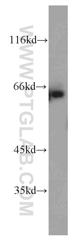 ENT1 Antibody in Western Blot (WB)