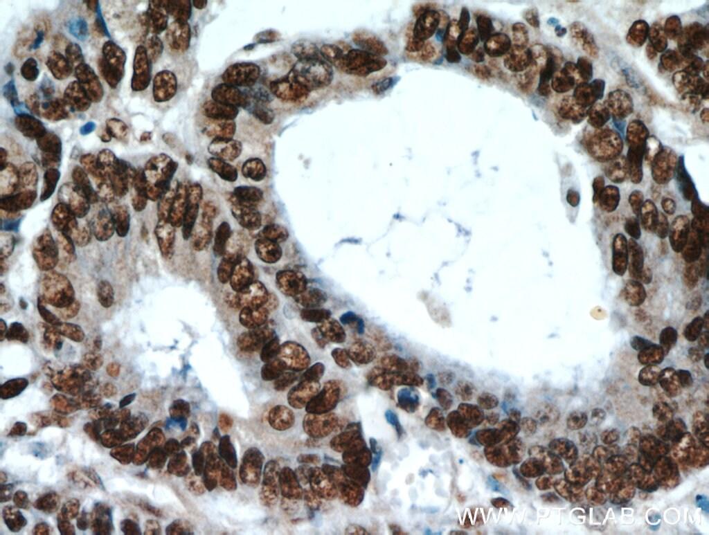 HDGF Antibody in Immunohistochemistry (Paraffin) (IHC (P))