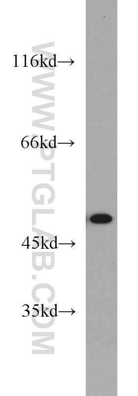 FH Antibody in Western Blot (WB)