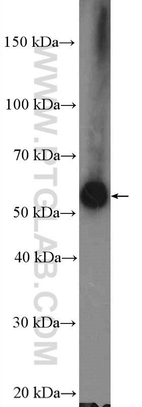 ARHGEF5 Antibody in Western Blot (WB)