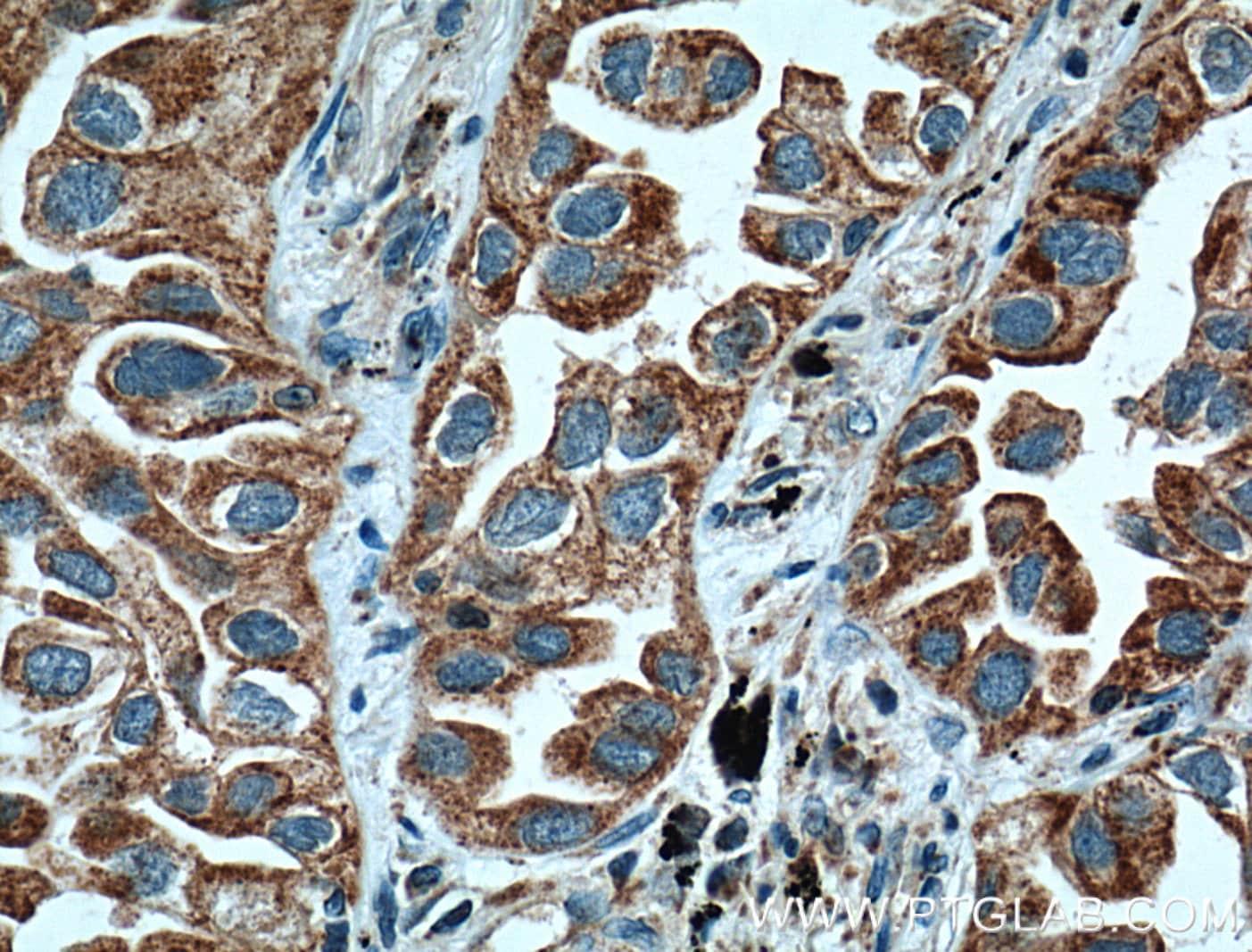 ARHGEF5 Antibody in Immunohistochemistry (Paraffin) (IHC (P))
