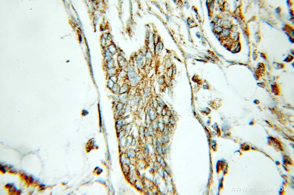 ECH1 Antibody in Immunohistochemistry (Paraffin) (IHC (P))