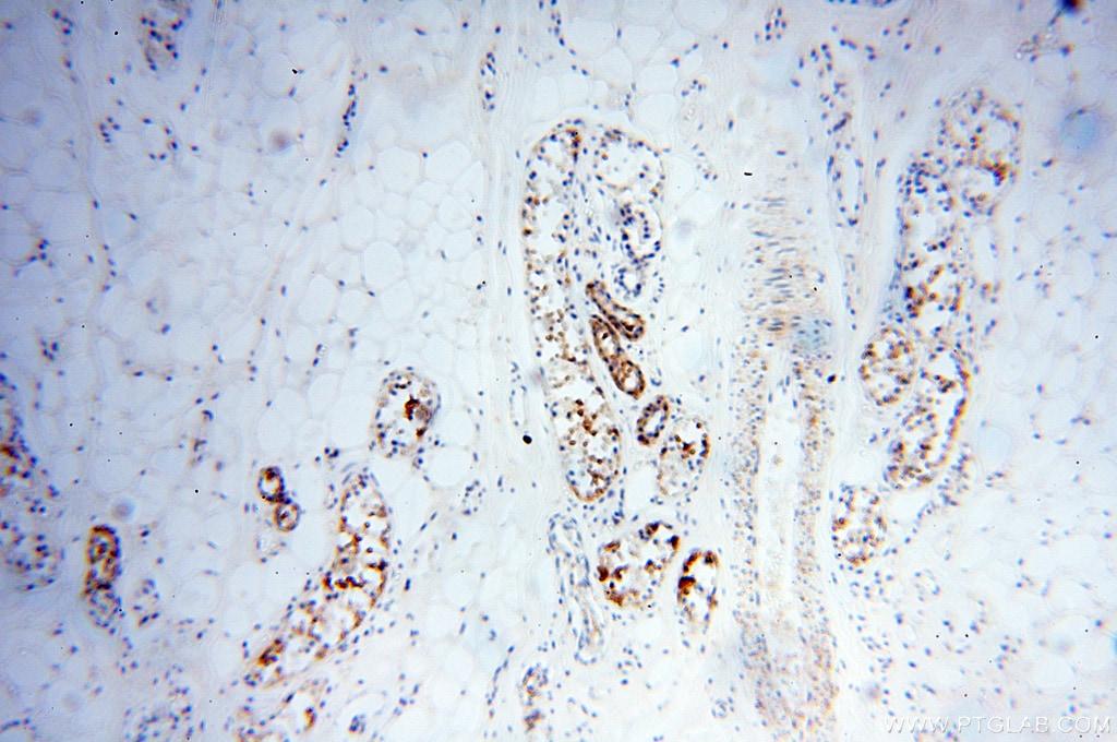 XPO6 Antibody in Immunohistochemistry (Paraffin) (IHC (P))