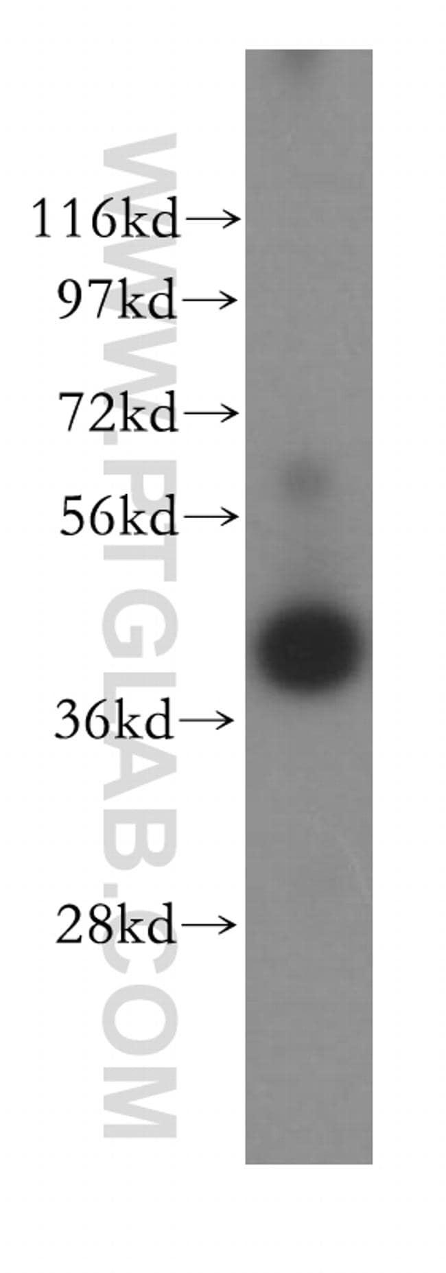 IL2RG Antibody in Western Blot (WB)