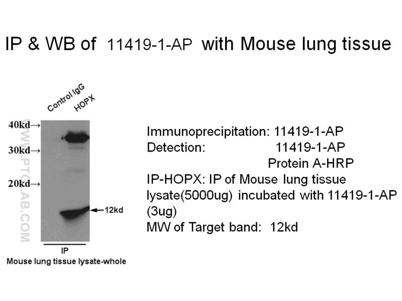 HOPX Antibody in Immunoprecipitation (IP)