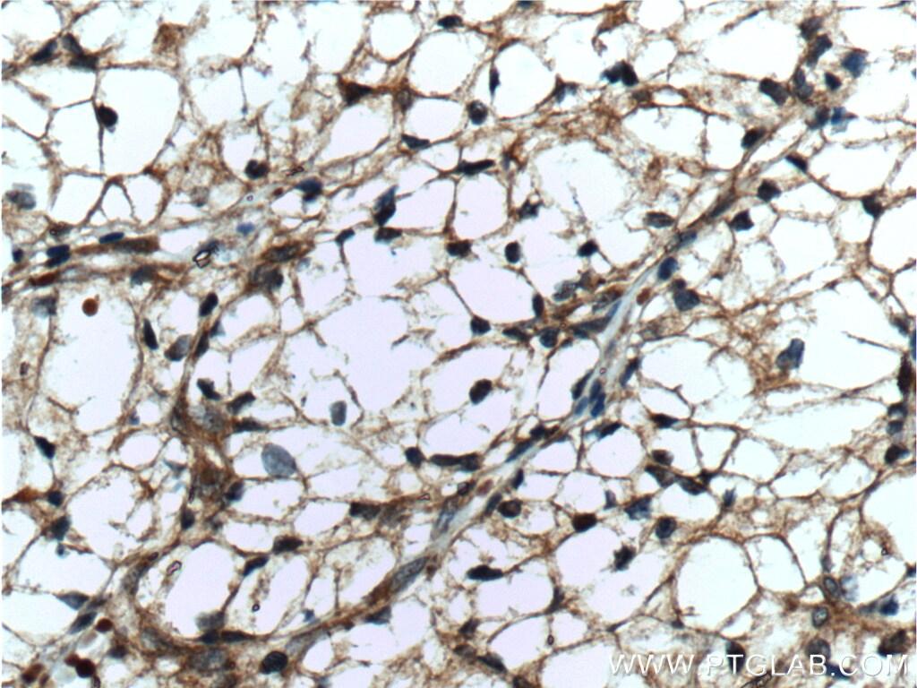 GRK6 Antibody in Immunohistochemistry (Paraffin) (IHC (P))