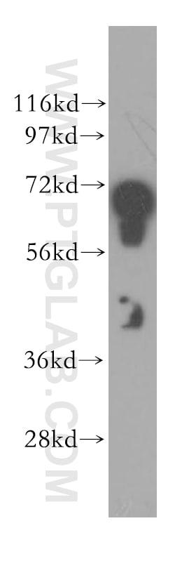 STXBP1 Antibody in Western Blot (WB)