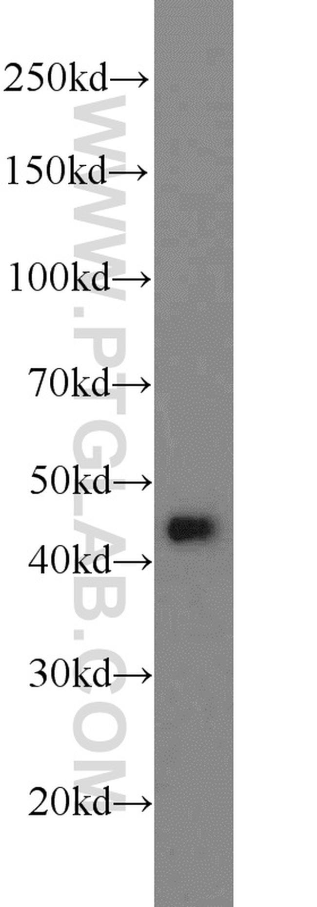 ADRM1 Antibody in Western Blot (WB)
