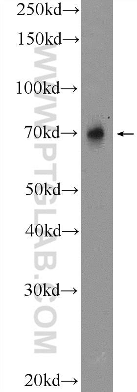 TRIM5 Antibody in Western Blot (WB)