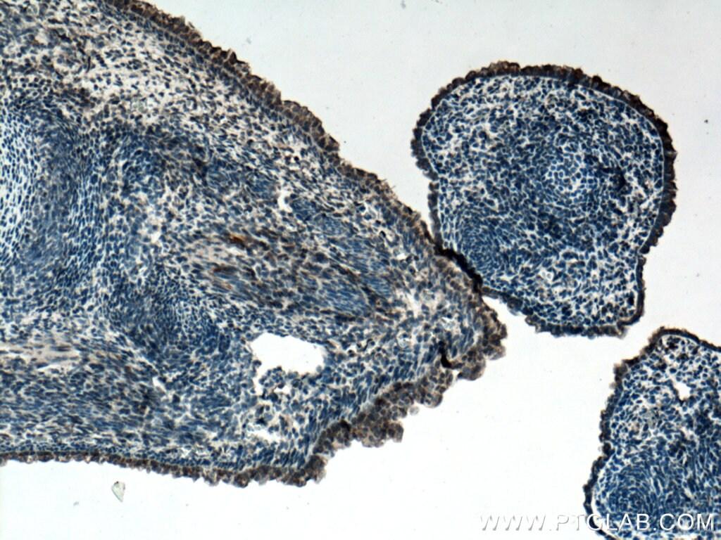 FGF18 Antibody in Immunohistochemistry (Paraffin) (IHC (P))