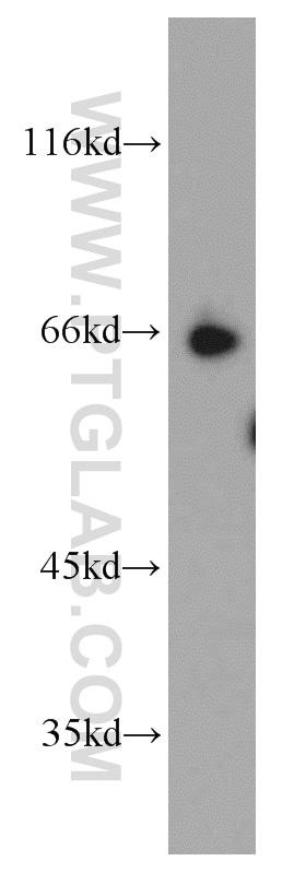 SP110 Antibody in Western Blot (WB)