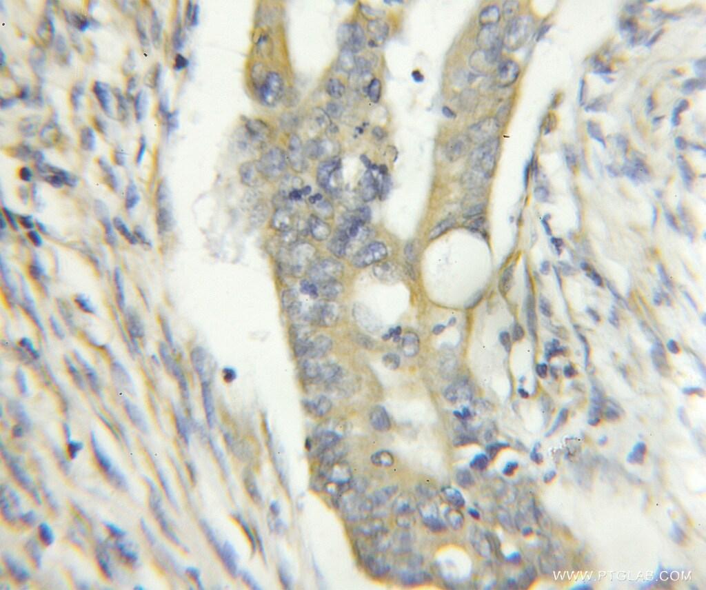 YME1L1 Antibody in Immunohistochemistry (Paraffin) (IHC (P))