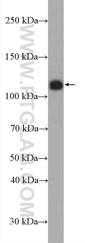 PHF15 Antibody in Western Blot (WB)