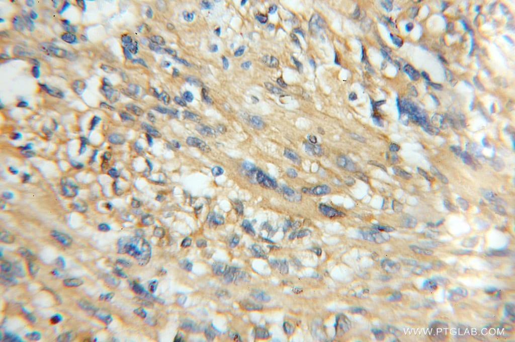 CaMKII beta Antibody in Immunohistochemistry (Paraffin) (IHC (P))