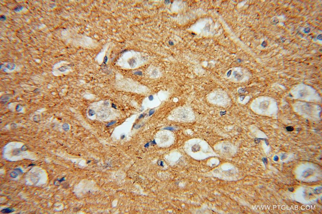 DGKA Antibody in Immunohistochemistry (Paraffin) (IHC (P))