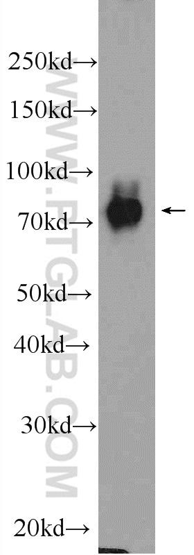 DGKA Antibody in Western Blot (WB)