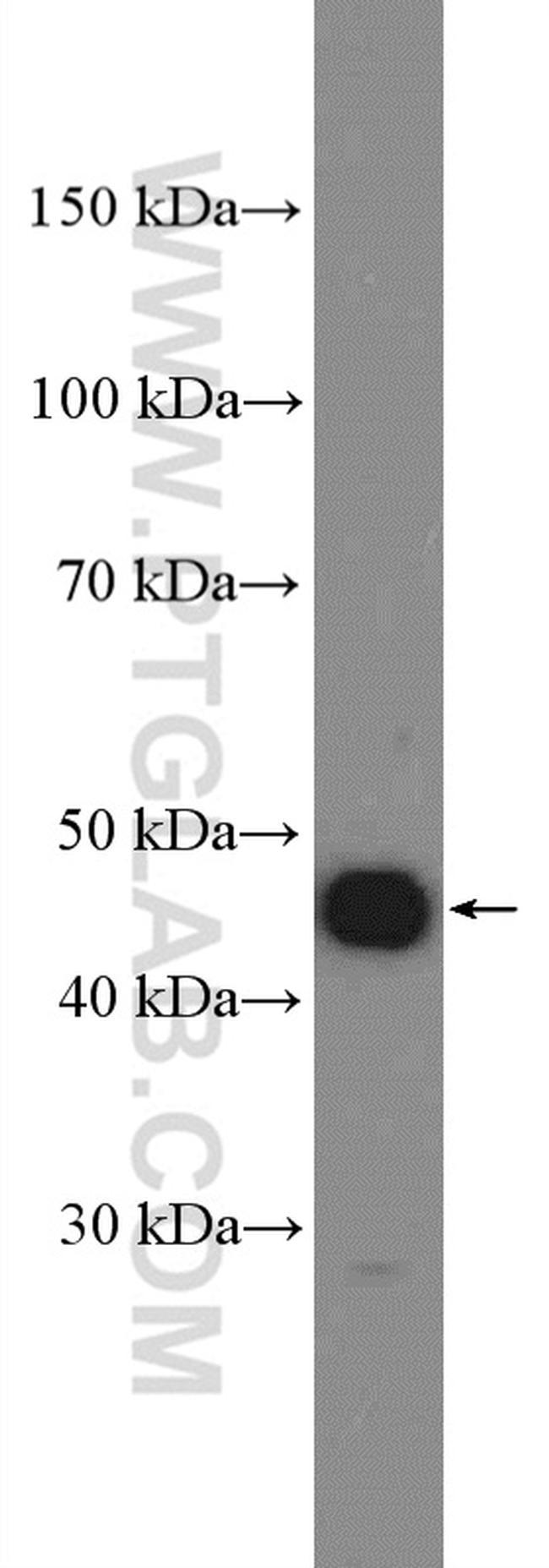 Cyclin E1 Antibody in Western Blot (WB)