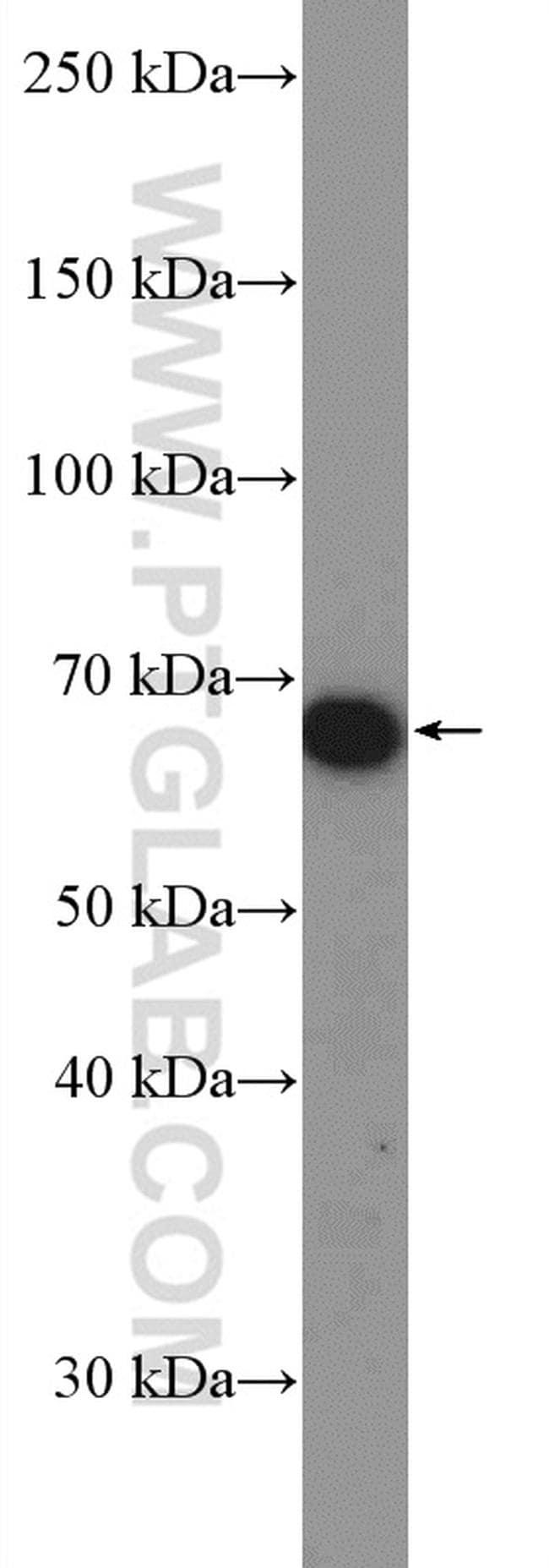 SRP68 Antibody in Western Blot (WB)