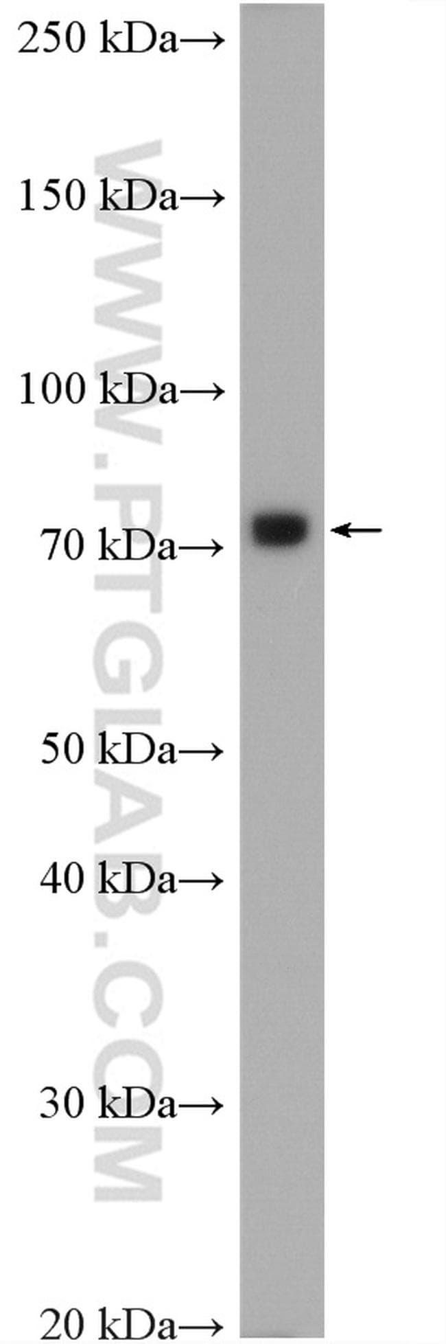 GRP78/BIP Antibody in Western Blot (WB)