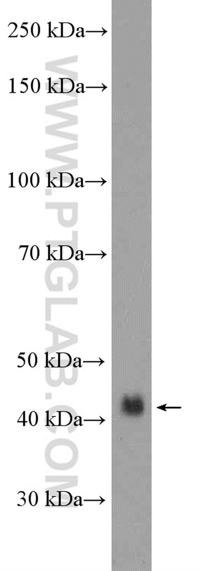 Podoplanin Antibody in Western Blot (WB)