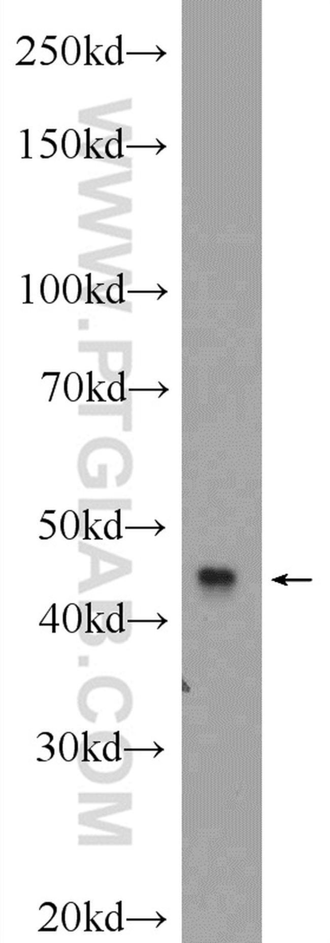 MCHR1 Antibody in Western Blot (WB)