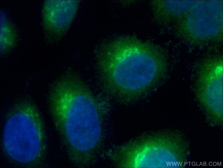 ARF4 Antibody in Immunofluorescence (IF)