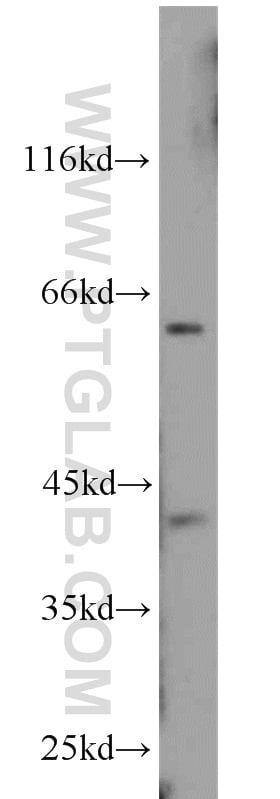 CDK9 Antibody in Western Blot (WB)