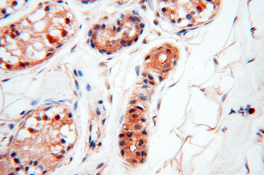 SMN Antibody in Immunohistochemistry (Paraffin) (IHC (P))