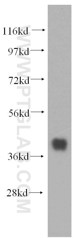 SMN Antibody in Western Blot (WB)