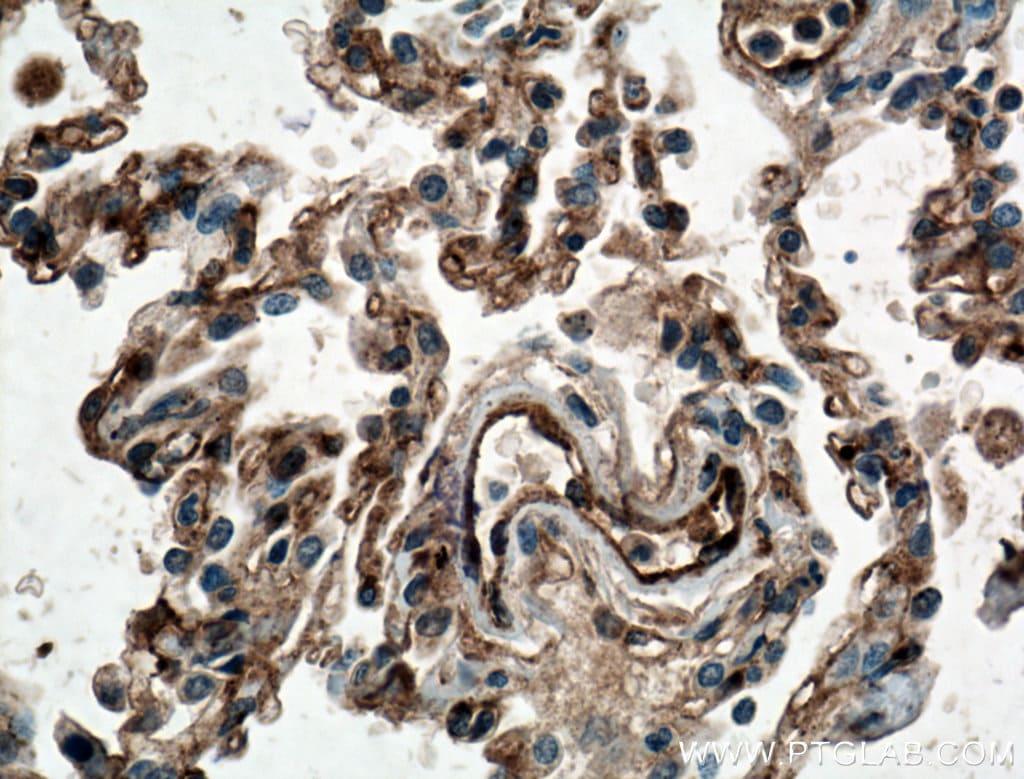 IFITM3 Antibody in Immunohistochemistry (Paraffin) (IHC (P))