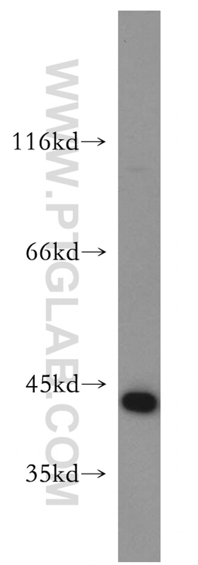 Maspin Antibody in Western Blot (WB)