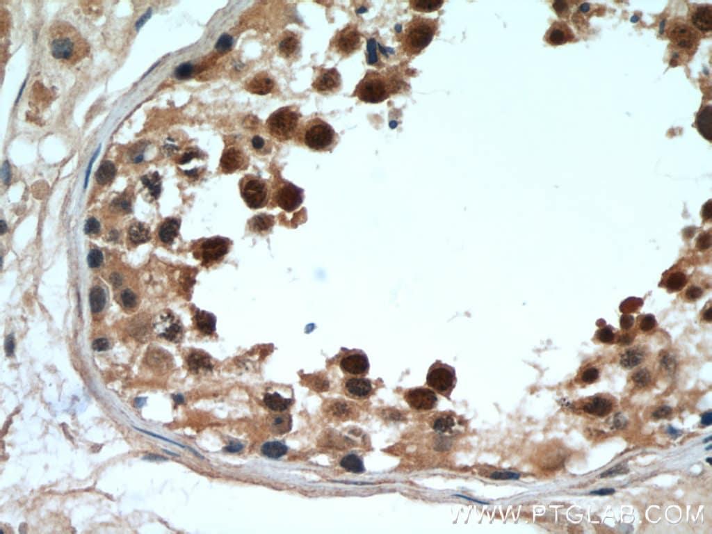 DDX39A Antibody in Immunohistochemistry (Paraffin) (IHC (P))