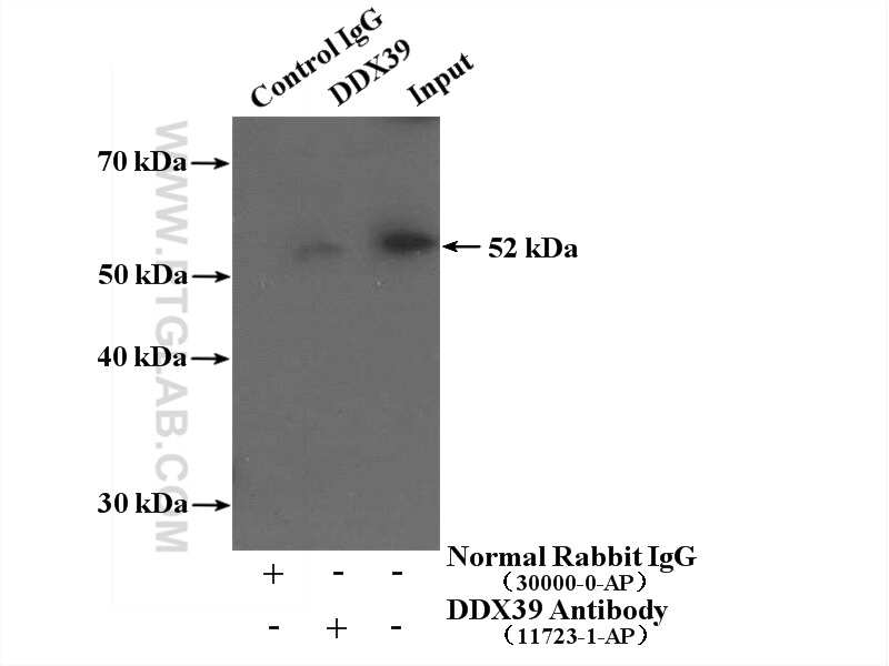 DDX39A Antibody in Immunoprecipitation (IP)