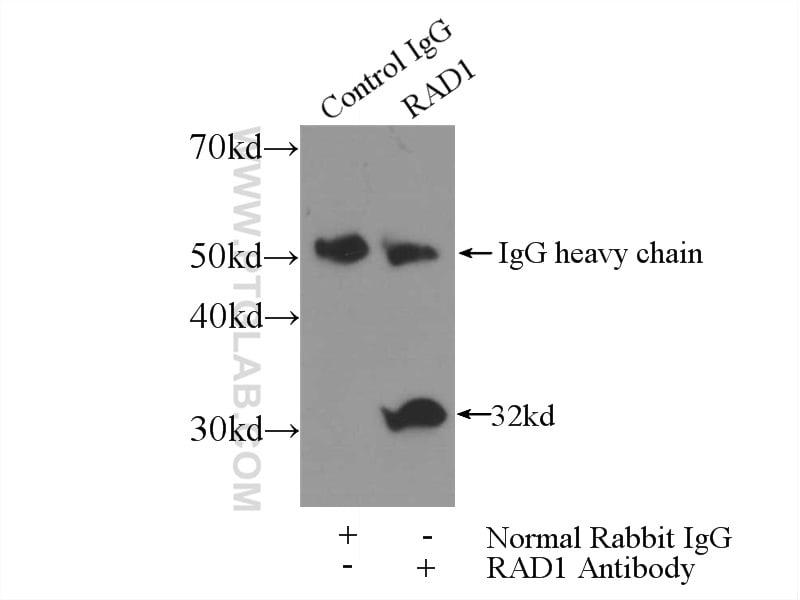RAD1 Antibody in Immunoprecipitation (IP)