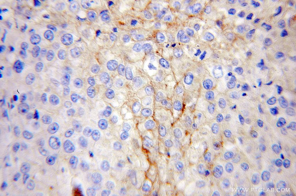 IFITM1 Antibody in Immunohistochemistry (Paraffin) (IHC (P))