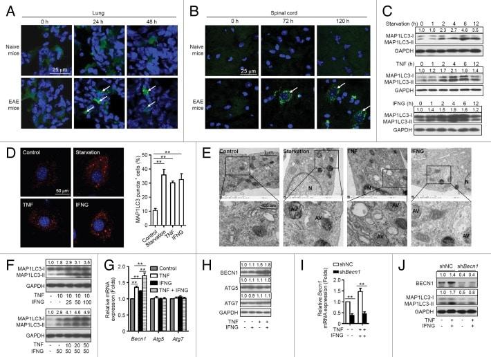 IFN gamma Antibody in Western Blot, Immunohistochemistry (WB, IHC)