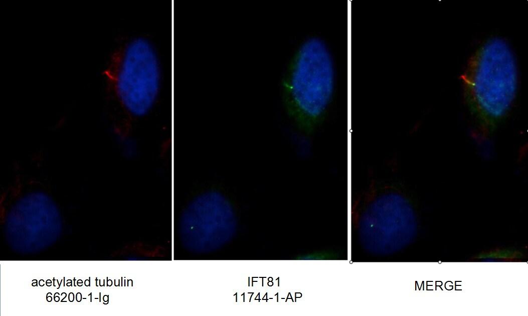 IFT81 Antibody in Immunocytochemistry (ICC/IF)