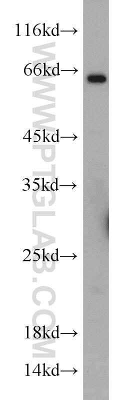 TWIST2 Antibody in Western Blot (WB)
