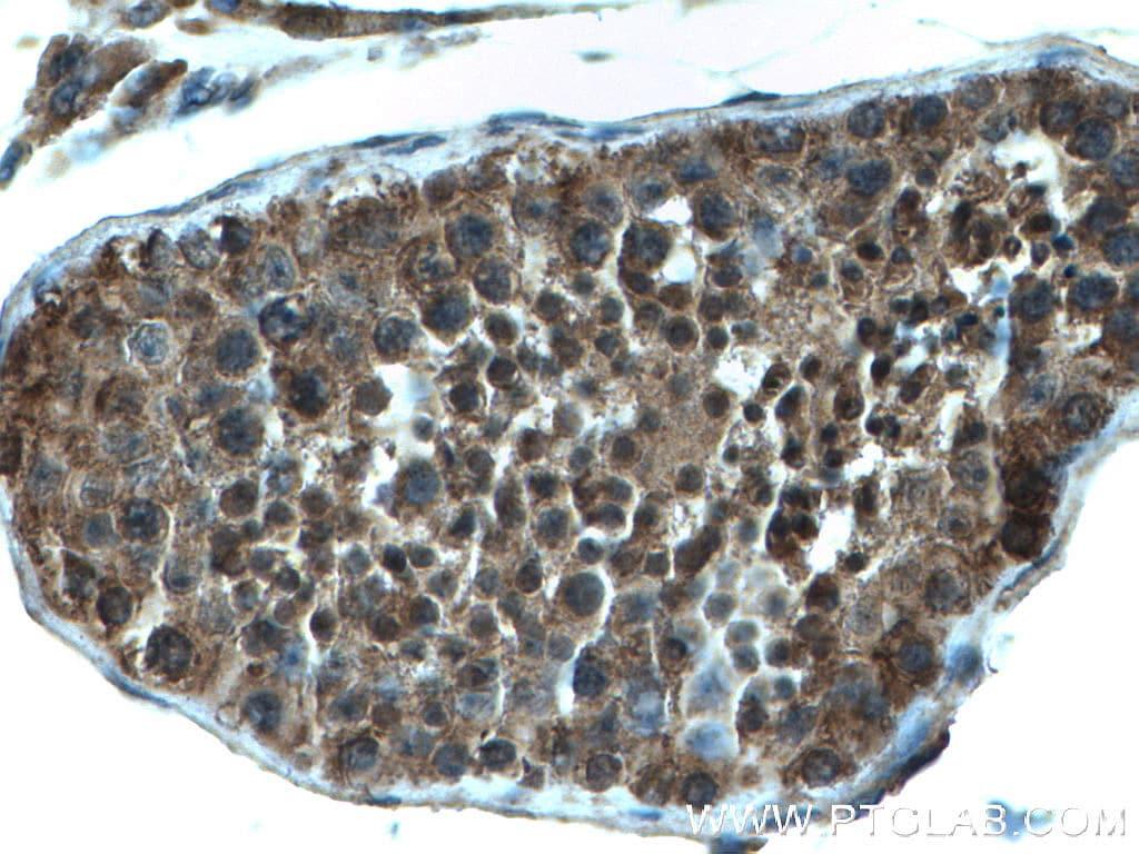 FKBP3 Antibody in Immunohistochemistry (Paraffin) (IHC (P))