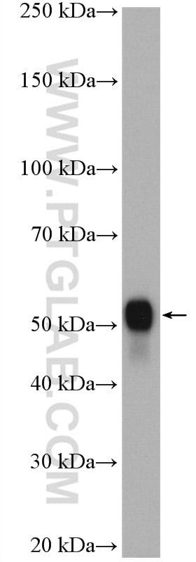 NAMPT/PBEF Antibody in Western Blot (WB)