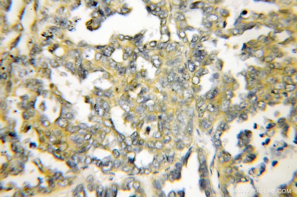 DIO1 Antibody in Immunohistochemistry (Paraffin) (IHC (P))
