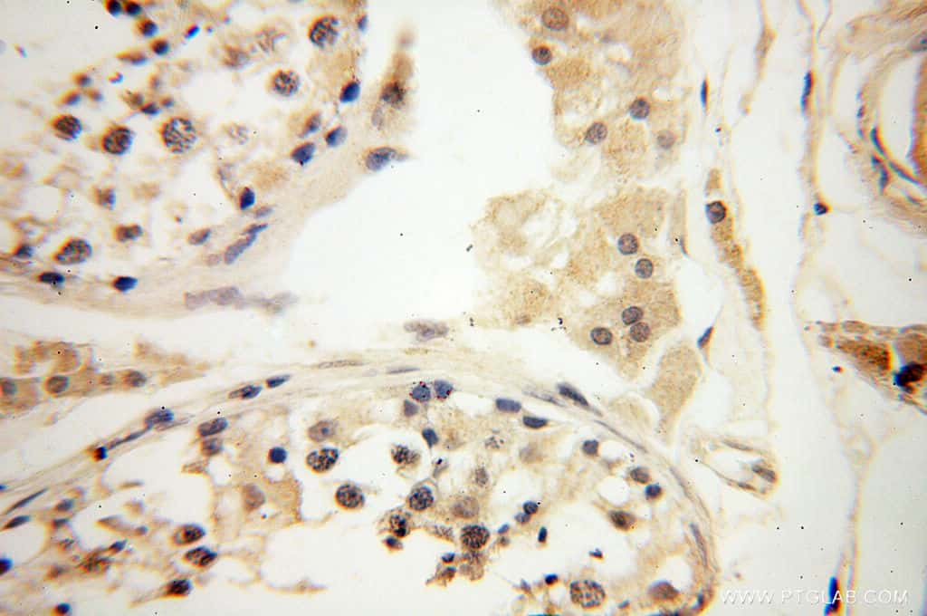 POPDC3 Antibody in Immunohistochemistry (Paraffin) (IHC (P))