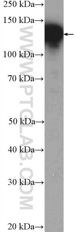 NOLC1 Antibody in Western Blot (WB)