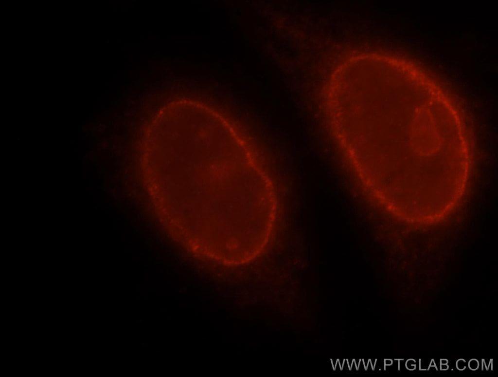 RAG2 Antibody in Immunofluorescence (IF)