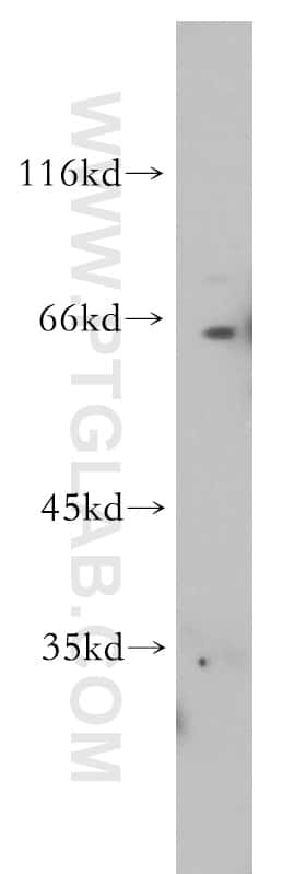 RAG2 Antibody in Western Blot (WB)