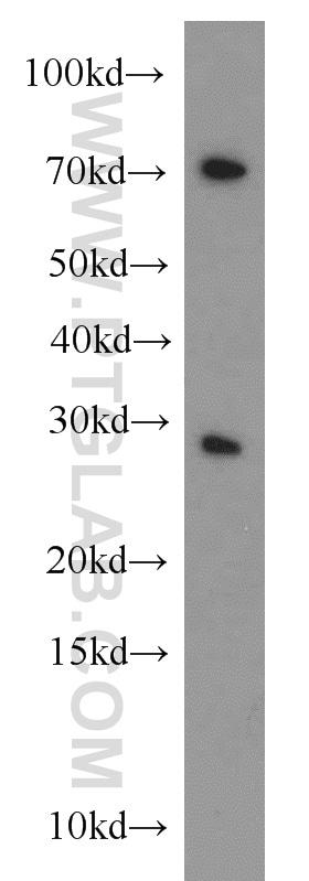 CBX5 Antibody in Western Blot (WB)